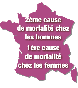 maladie cardiovasculaire femme